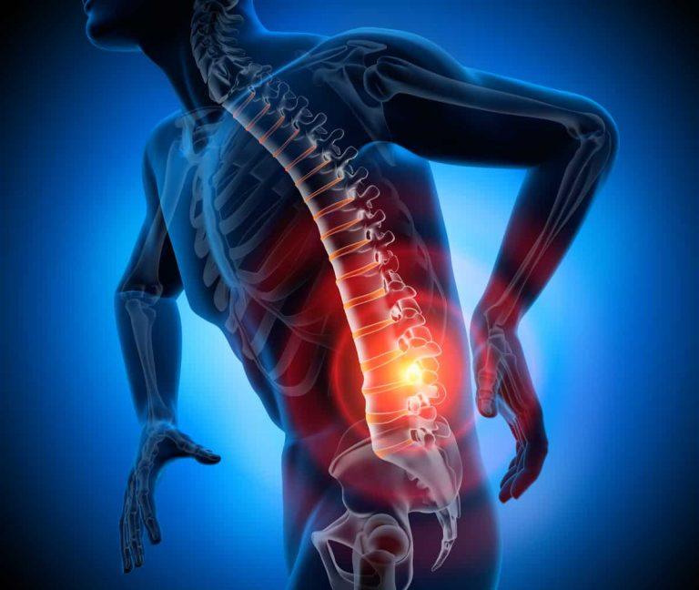 Starke Rückenschmerzen können auf einen Bandscheibenvorfall hindeuten